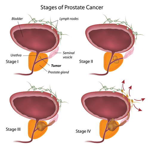 Stages of prostate cancer